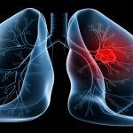 أعراض سرطان الرئة لدى السيدات