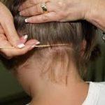 ما هو مرض سعفة الرأس ؟ وما هو علاجه ؟