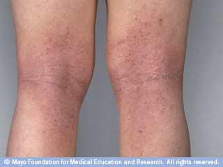 بالصور شرح انواع التهابات الجلد وعلاجها المرسال