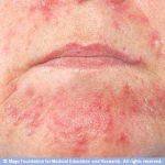 بالصور شرح انواع التهابات الجلد وعلاجها