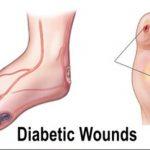 اهمية العلاج الطبيعي لمرضى القدم السكري
