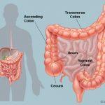 شرح مفصل عن مرض القولون العصبي