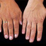 الامراض الجلدية التي تغير لون الجلد