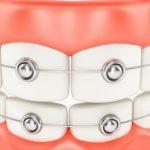 معلومات كاملة عن انواع تقويم الاسنان