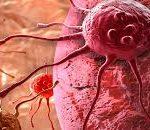 """""""يوم الصحة العالمي"""" : احترس من أنواع السرطان !"""