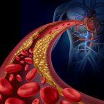 مشاكل المكملات الغذائية التي تقلل الكولسترول