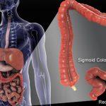 السرطان القولوني المستقيمي