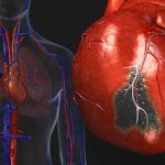 كيفية الوقاية من النوبات القلبية