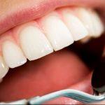 ابتكار علاج جديد لعلاج تسوس الأسنان بدون الحاجة للحشو
