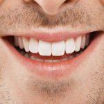 كيفية تبييض الأسنان طبيعياً
