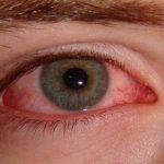 العلاجات المنزلية لحرقة العين من الحساسية