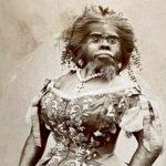 مسوخ السيرك في القرن الماضي الذين تم استغلالهم