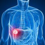 أرقام إنزيمات الكبد الطبيعية وغير الطبيعية ودلالاتها