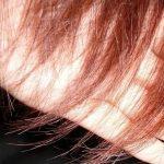 نقص الحديد هل يسبب تساقط الشعر