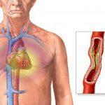 أسباب وعلاج مرض تضيق الشريان الأبهر