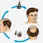 دليل زراعة الشعر في الرياض