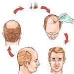 دليل مراكز زراعة الشعر في جدة