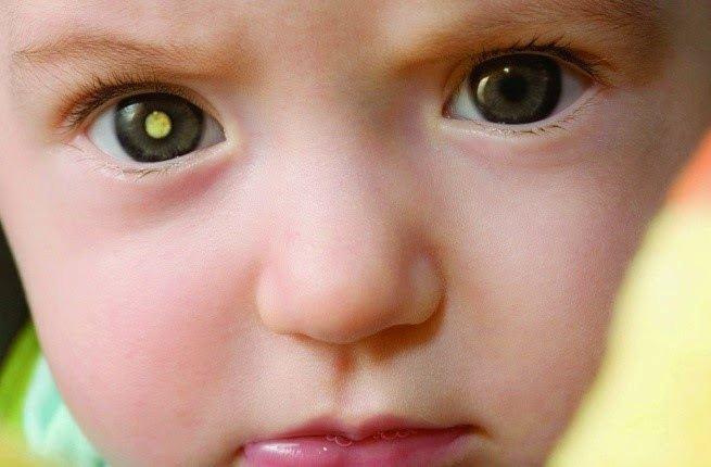 الأسباب المرضية للمعان العين