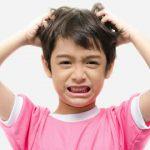 قشرة الرأس عند الأطفال - الأسباب والعلاج والعلاجات المنزلية