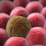 السرطان المتنقل و بعض أعراضه و علاماته
