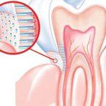الطرق الصحيحة للحفاظ على الاسنان الحساسة