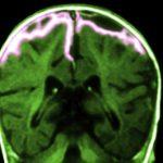 أعراض التهاب الأغشية الدماغية و علاجه