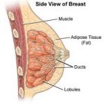 التهاب الثدي الحبيبي و أسباب الإصابة به