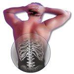 ألم أعلى وأوسط الظهر ( العمود الفقري الصدري )