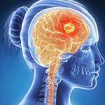 أعراض سرطان المخ عند المرأة