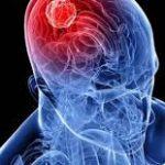 أعراض وعلاج الورم الأرومي في الدماغ
