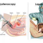 مقارنة بين المنظار والعمليات الجراحية في استئصال الرحم