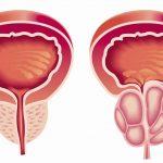 طرق علاج سرطان البروستاتا الحميد