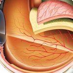 معلومات عن تركيب و مكونات العين الداخلية