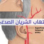 اعراض التهاب الشريان الصدغي وطرق العلاج