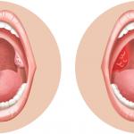الفرق بين التهاب اللوز البكتيري والفيروسي