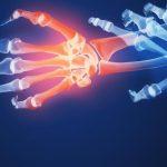 الفرق بين التهاب المفاصل وهشاشة العظام