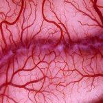 علاج الشعيرات الدموية المتفجرة