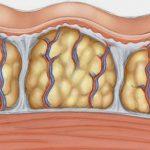 دلالات وعلامات حرق الدهون في الجسم