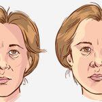 اعراض شلل العصب الرابع وعلاجه