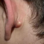 اسباب التهاب الغدد اللمفاوية خلف الاذن