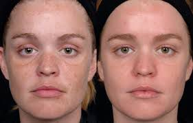 Benefits of Crystal Peeling benefits of egg whites for skin Benefits of egg whites for skin  D9 81 D9 88 D8 A7 D8 A6 D8 AF  D8 A7 D9 84 D8 AA D9 82 D8 B4 D9 8A D8 B1  D8 A7 D9 84 D9 83 D8 B1 D9 8A D8 B3 D8 AA D8 A7 D9 84 D9 8A benefits of egg whites for skin Benefits of egg whites for skin  D9 81 D9 88 D8 A7 D8 A6 D8 AF  D8 A7 D9 84 D8 AA D9 82 D8 B4 D9 8A D8 B1  D8 A7 D9 84 D9 83 D8 B1 D9 8A D8 B3 D8 AA D8 A7 D9 84 D9 8A