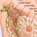 المضاعفات المتوقعة بعد استئصال الثدي بسبب سرطان الثدي
