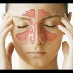 هل التهاب الجيوب الانفية يسبب دوخة