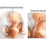 اعراض التهاب شريان الصدغ وكيفية علاجه