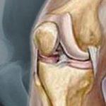 الفرق بين التهاب المفاصل والروماتيزم