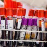 انواع التحاليل التي تحتاج سحب دم
