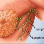 الفرق بين خراج الثديوسرطان الثدي