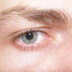 ردود الفعل من تلامس زيت فيتامين E مع العين