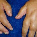 أفضل العلاجات الطبيعية لالتهاب المفاصل الصدفي