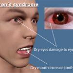 أعراض متلازمة سجوجرن و أسباب الإصابة بها